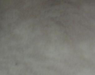 仙桃白癜风治疗费用?武汉什么原因导致白癜风加速扩散呢?