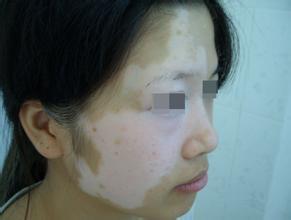 武汉哪家医院可以治疗白斑病?白癜风如何正确进行护理?