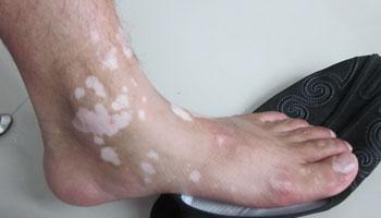 武汉哪里治疗白癜风最好?初期脚部白癜风有什么症状?
