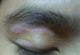 武汉环亚医院官网脸上有白斑