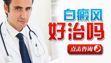 武汉白斑治疗会受到哪些方面影响?